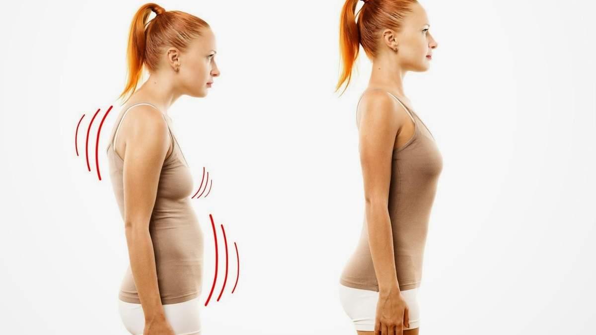 Упражнения от сутулости: комплекс для любого возраста