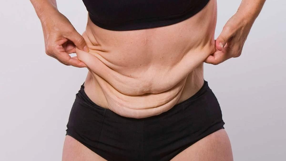 Куди дівається шкіра після схуднення: відповідь відомої тренерки